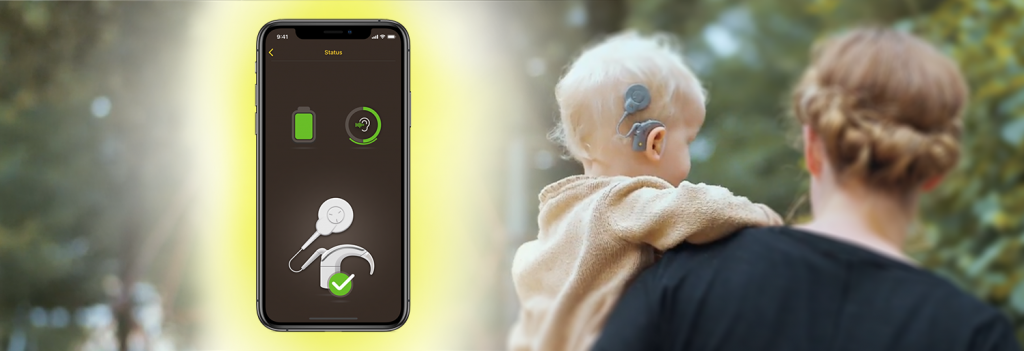 What is a Cochlear account?